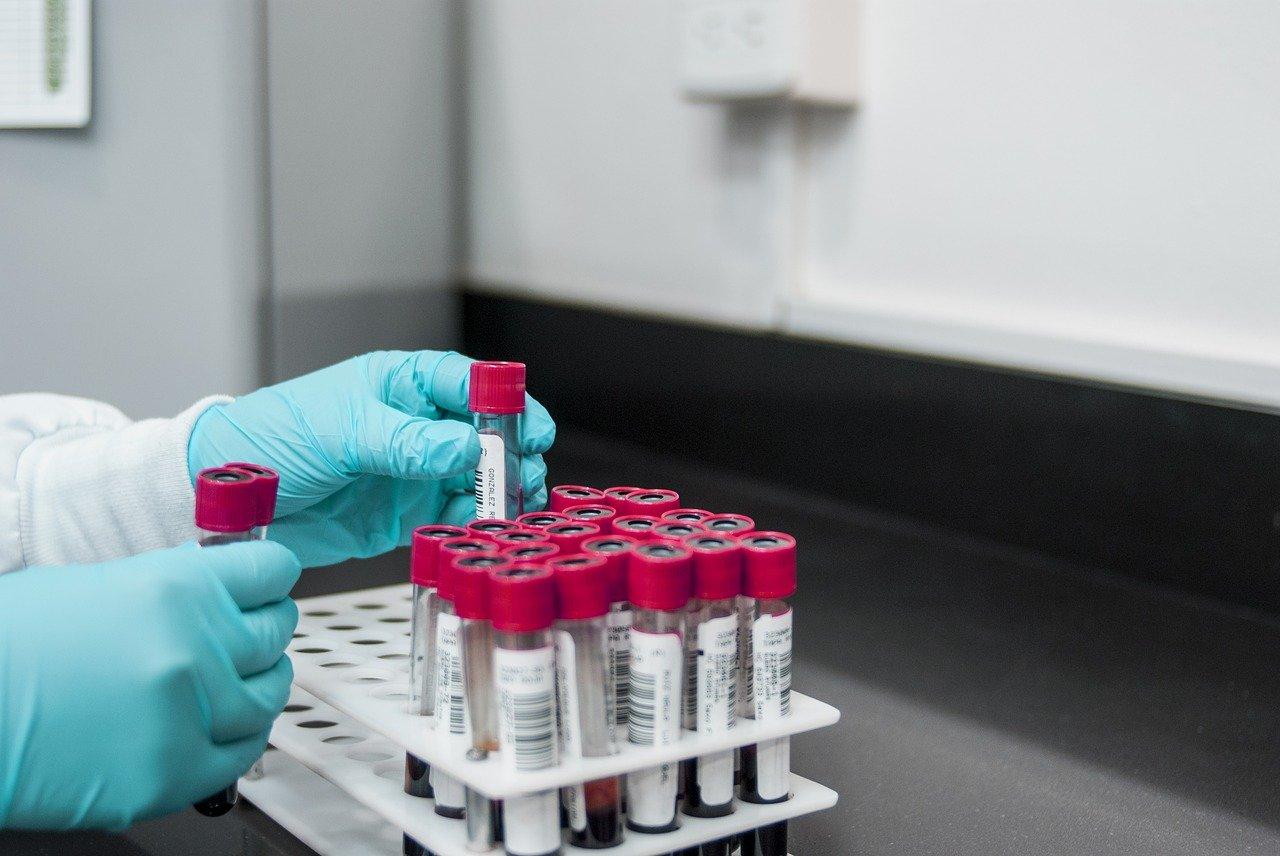 Badanie krwi na boreliozę